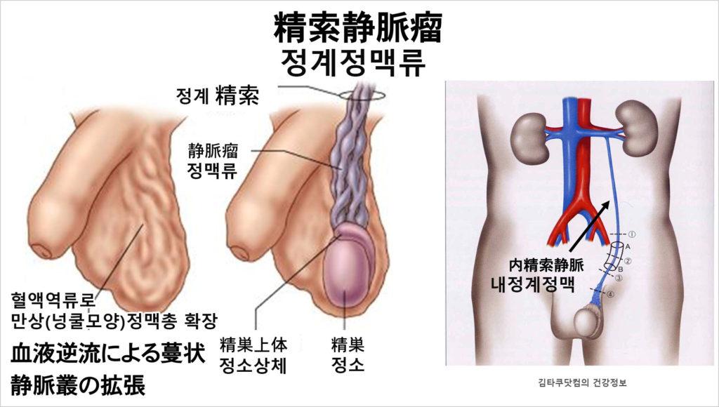 남성고환질환 정계정맥류 1024x580 결혼전 임신준비, 정자의 건강을 검진하는 남성들 증가