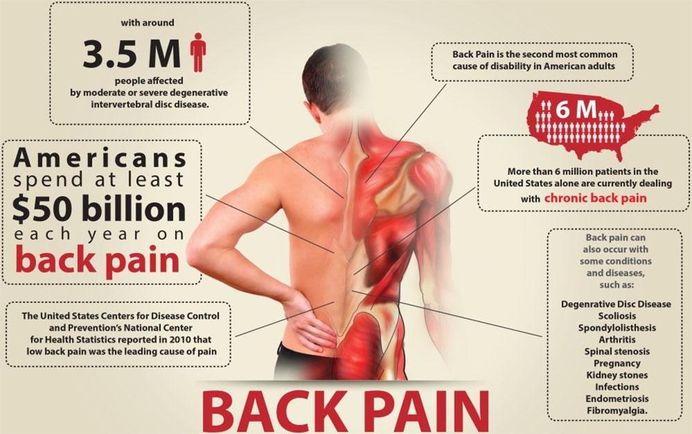 Back Pain 요통, 허리통증에 좋은 스트레칭 방법 5가지
