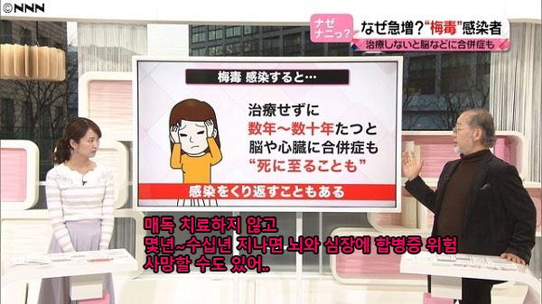 성병 매독치료 일본 성병환자 급증! 20대 젊은여성, 매독 감염자 늘어