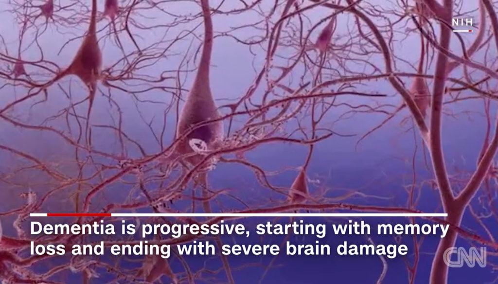치매 뇌손상 1024x584 스트레스는 기억력 저하와 뇌 수축 초래! 40대에도 영향