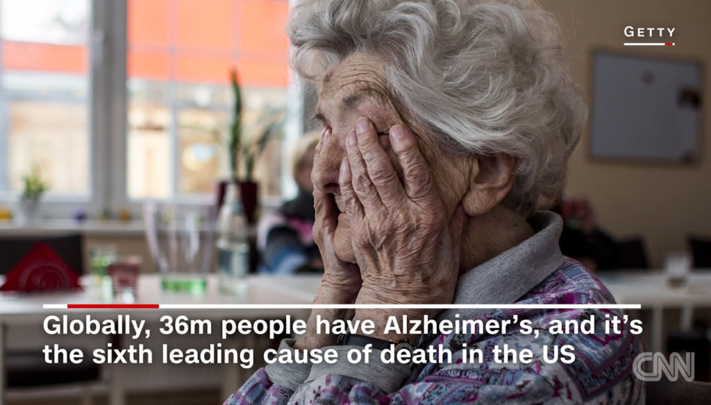 치매1 1024x584 스트레스는 기억력 저하와 뇌 수축 초래! 40대에도 영향