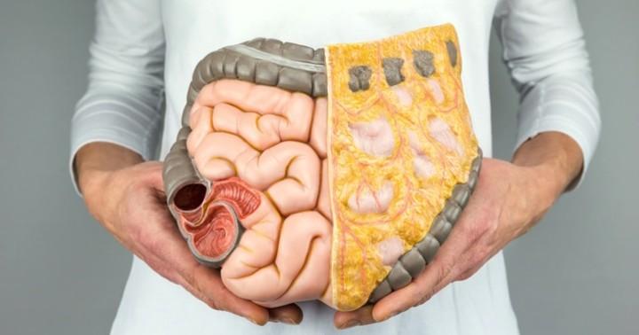 대장암 사망 여성 암사망 1위! 저탄수화물 다이어트 대장암 위험성