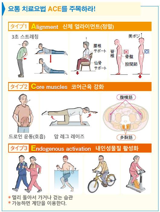 요통치료ACE 요통에 특효 셀프케어 3초 스트레칭 체조와 코어근육 강화 드로인 운동법