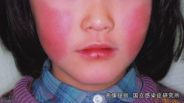 사과병 일본 도쿄 사과병(전염성 홍반) 유행! 임신부는 주의! 손씻는 방법
