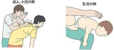 음식물이 기도에 막혔을 때 도쿄에서 떡이 목에 걸려 2명 질식사! 기도폐쇄 응급처치법