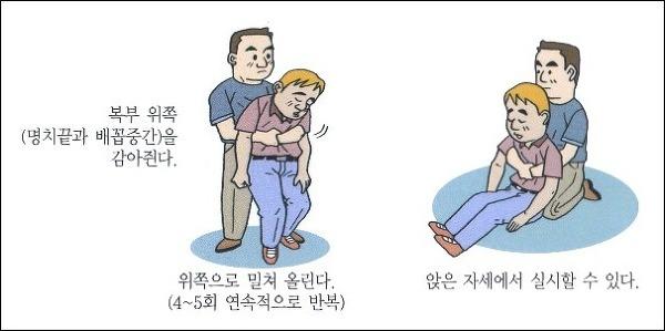 하임리히법2 도쿄에서 떡이 목에 걸려 2명 질식사! 기도폐쇄 응급처치법