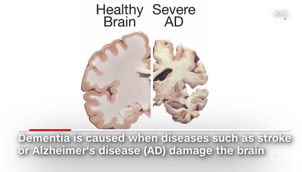 알츠하이머 치매 뇌구조 1024x584 스트레스는 기억력 저하와 뇌 수축 초래! 40대에도 영향