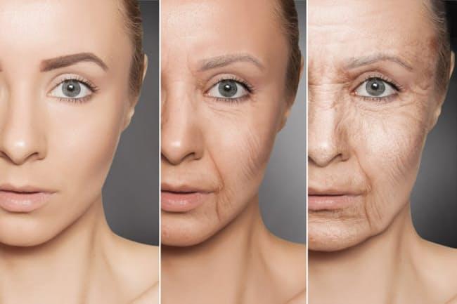 피부노화 노화의 원인 당화(糖化), 탄수화물 외 음주와 밀접한 관련