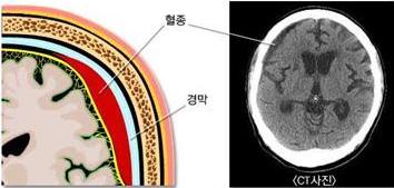 경막 혈종 일본의 아동학대 사건! 생후 4개월 아이 뇌손상과 의문사