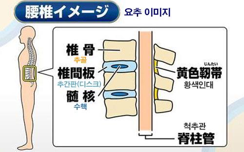 요추 화제의 급성요통 치료! 허리통증 예방 3초 스트레칭 동작 및 자세
