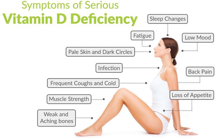Vitamin D Deficiency2 비타민D 결핍환자 급증! 일광욕 야외활동으로 면역력 강화해야
